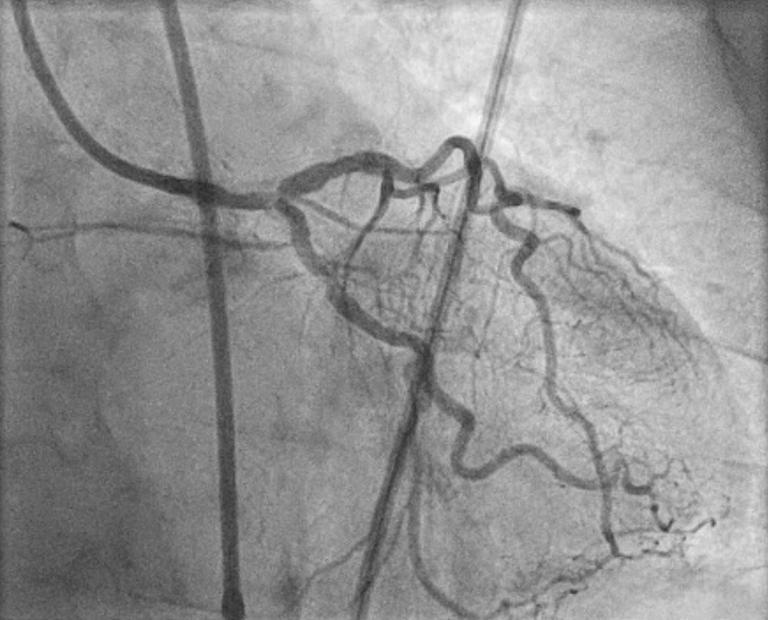Koronarangiographie vor Intervention mit verkalkter Hauptstammstenose